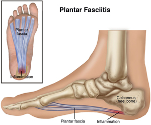 Podiatric Associates Foot Ankle Center Plantar Fasciitis Heel Pain In Pembroke Pines